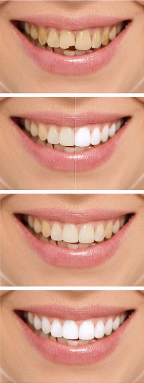estetica-dentale-sorridiamo